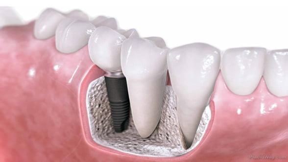 5 detalii care te vor convinge sa alegi un implant dentar!