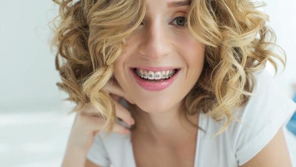 7 intrebari frecvente despre aparatul dentar fix si raspunsul stomatologilor
