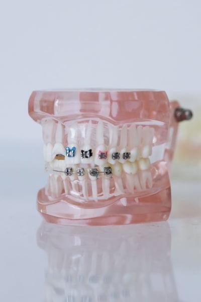 """Avantajele unui aparat dentar fix de safir - """"bijuteria"""" care se dovedeste deopotriva estetica, dar si utila pentru aspectul danturii"""