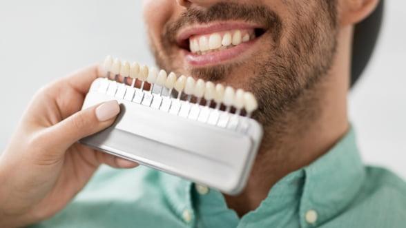 Ce trebuie să știi despre fațetele dentare?