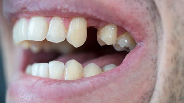 De ce sa nu amani inserarea unui implant dentar? Iata 5 motive ce te vor trimite cat mai curand la medic!