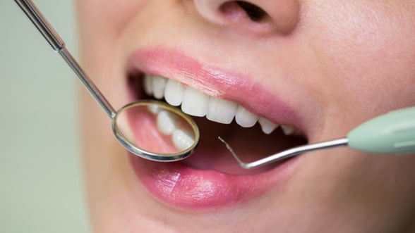 Intrebari si raspunsuri despre tratamentul cu implant dentar