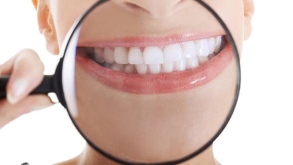 Mentine sanatatea dentara dupa sarbatori