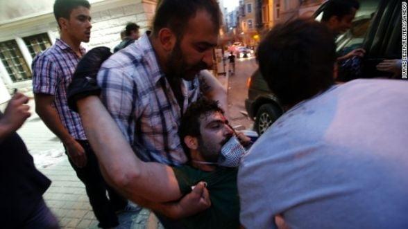Proteste Turcia. Guvernul ancheteaza medicii care au oferit ingrijiri manifestantilor