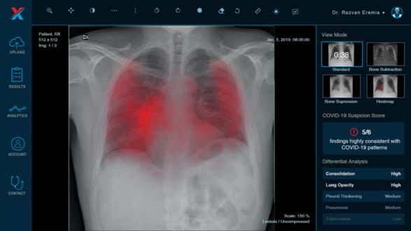 XVision scaneaza pacientii suspecti de COVID-19 in doua laboratoare mobile din Bucuresti si Timisoara